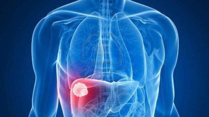รู้ไว้เรื่องใกล้ตัว สัญญาเตือนภัยโรคมะเร็ง 15 ชนิด
