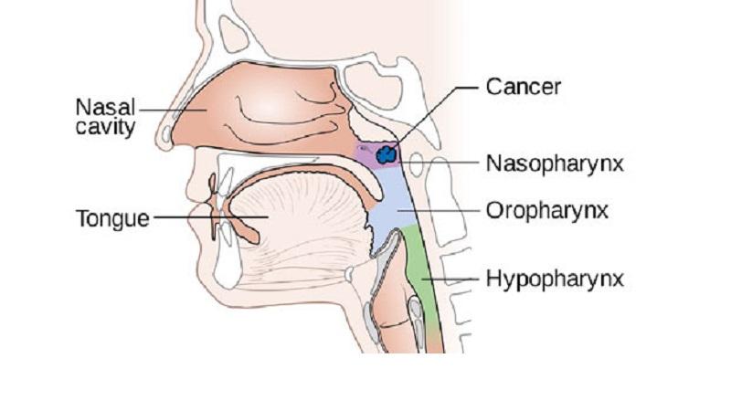 รู้จักมะเร็งโพรงจมูก